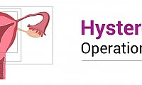 Hysterectomy Operation in Jaipur by Experienced and Skilled Specialist