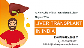 A_New_Life_with_a_Transplanted_Liver_Begins_With_Liver_Transplant_Surgery_in_India_grid.png