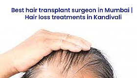 Best_hair_transplant_surgeon_in_Kandivali_grid.jpg