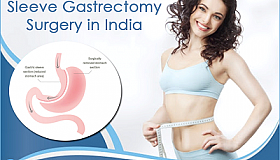 Sleeve_Gastrectomy_in_India_is_the_Fastest_Safest_Shortest_Route_to_a_Brand_New_You_grid.png