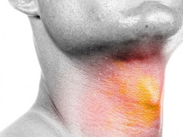 Professional Neck Cancer Doctor in Jaipur