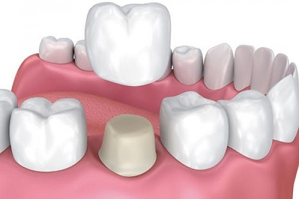 Achieve happy smile and healthy teeth with right dental treatment