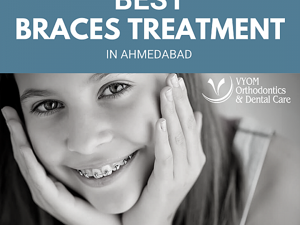 Best Braces Treatment in Ahmedabad